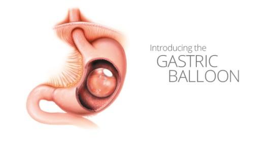 Gastric-Balloon-v2