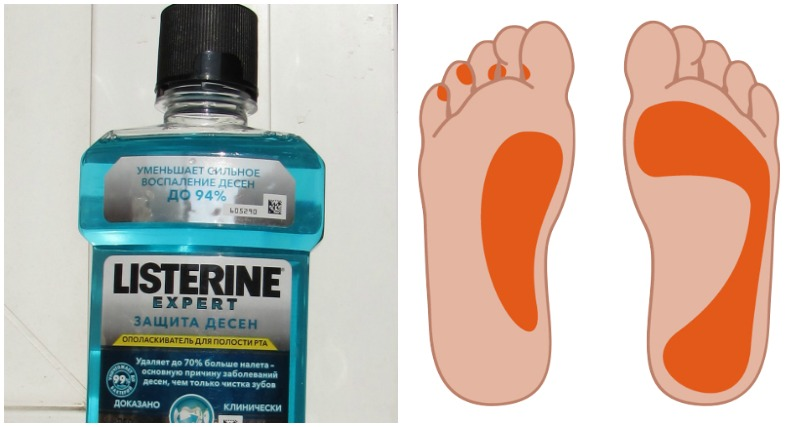 Listerine foot soak recipes