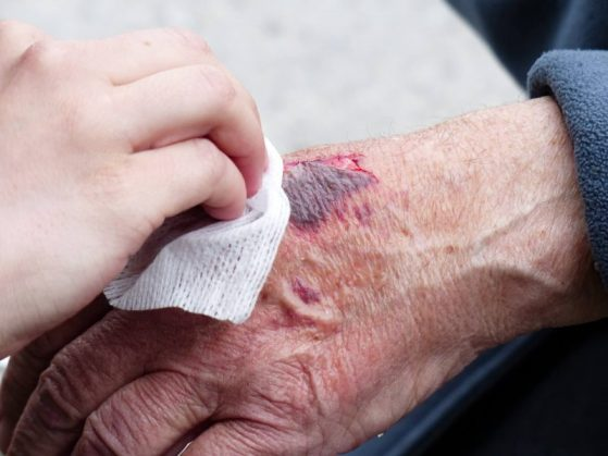 This cut is a first aid work injury. Treat wounds like this.