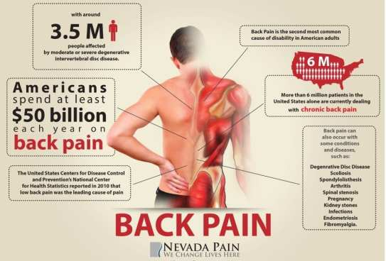 Spinal Decompression Therapy for Back Pain – What Should You Know?