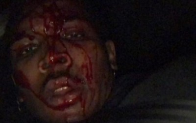 Benson Williams Was Allegedly SHOT In The Head By LAPD With A Rubber Bullet During BLM Protest