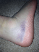 Krista ended the month with a severely sprained ankle