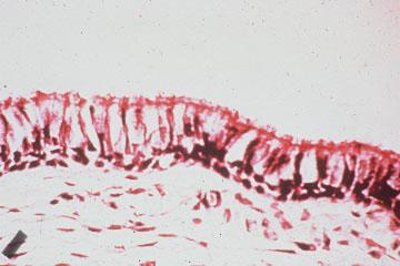 normal cilia
