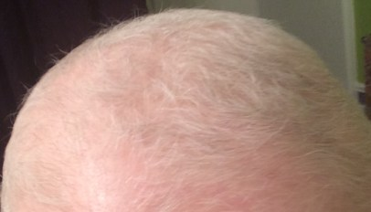 BLOG_Hair 1_01252016