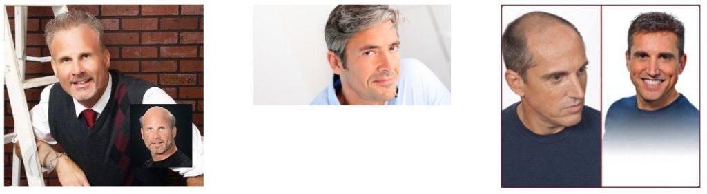 men's hair replacemen