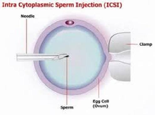 Solusi Infertilitas dengan ICSI