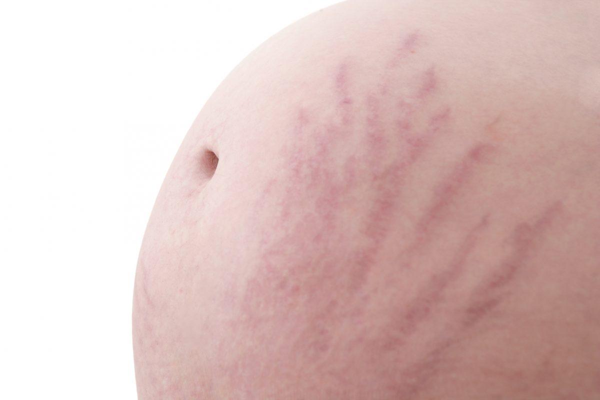 Mencegah Stretch Mark Pada Masa Kehamilan
