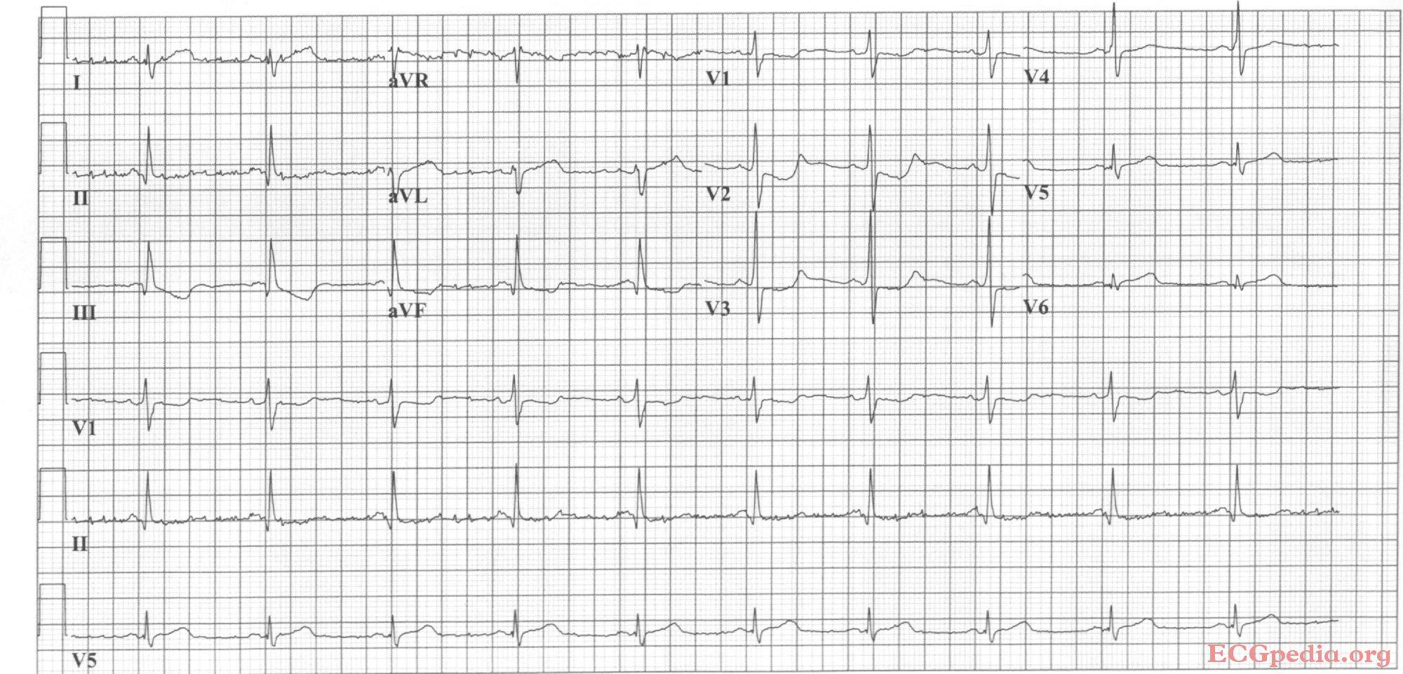 Posterior Myocardial Infarction