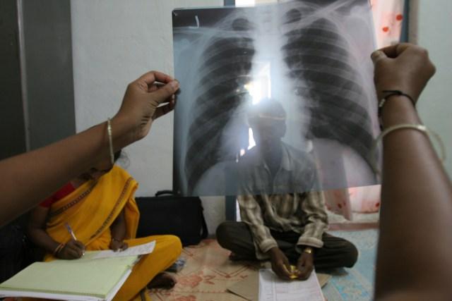 وباء ألإيبولا و وباء مرض السل