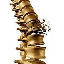 Loãng xương là bệnh gì? Triệu chứng, nguyên nhân và điều trị