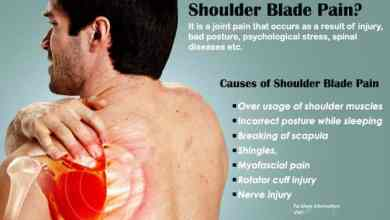 Photo of How To Get Rid of Burning Pain Under Shoulder Blade