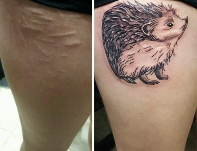 Tattoo Scar