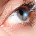 Tips To Prepare For Laser Eye Surgery
