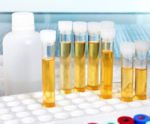 Synthetic Urine: – Trick to clear the urine drug test