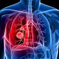 Lung Cancer Treatment: What to Expect