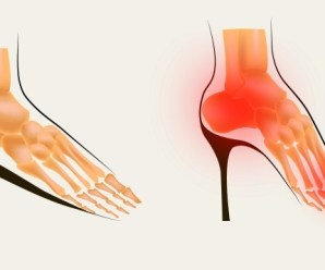 4 Effective Ways to Get Rid of Bunions