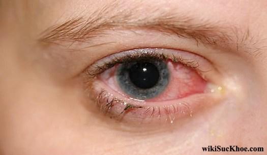 Bệnh đau mắt đỏ có thể dẫn đến viêm loét giác mạc