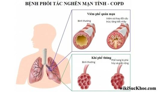 Bệnh tắc nghẽn phổi mãn tính