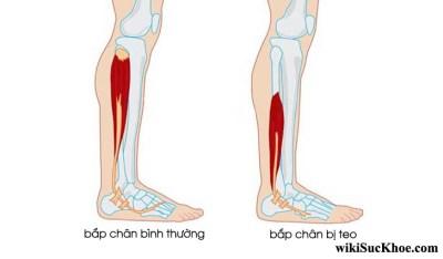Bệnh teo cơ bắp chân: Khái niệm, nguyên nhân, triệu chứng,điều trị và phòng ngừa
