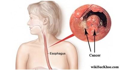Bệnh ung thư thực quản: Khái niệm, nguyên nhân, triệu chứng, phòng ngừa