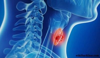 Bệnh ung thư tuyến giáp: Khái niệm, nguyên nhân, triệu chứng, phòng ngừa