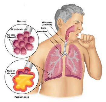 Image result for symptoms of pneumonia wiki