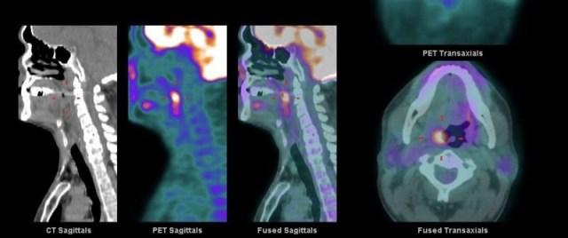 南投中年男子右耳長期疼痛 一檢查竟是扁桃腺癌