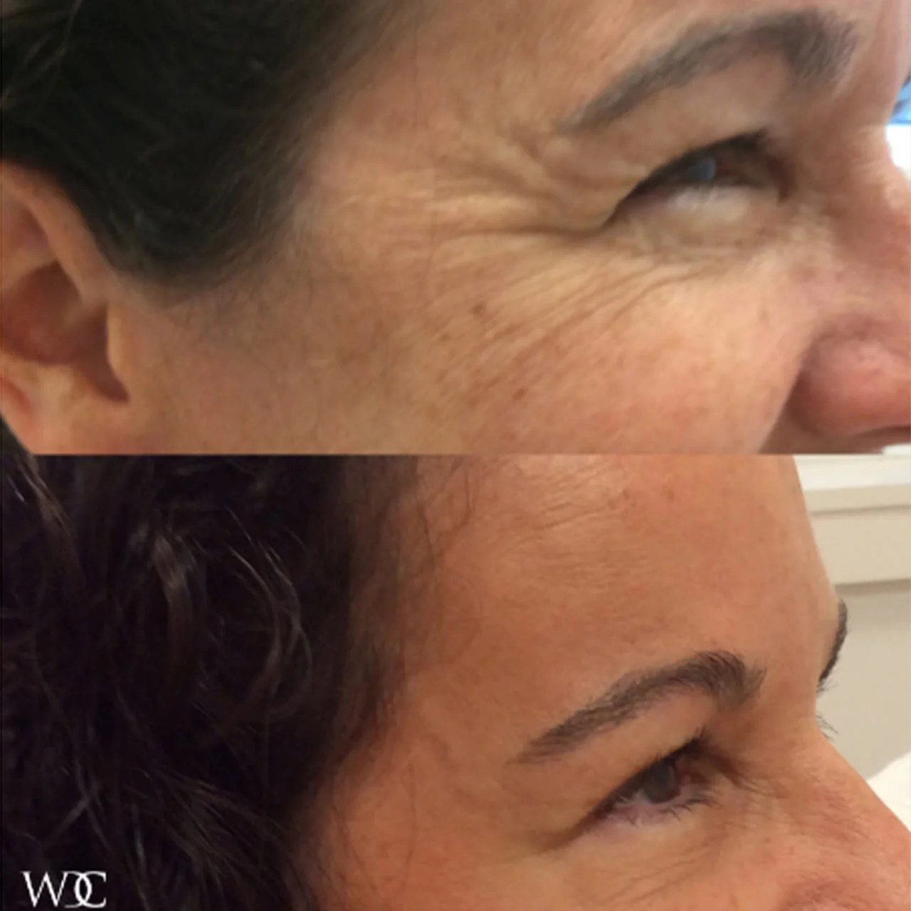 Medical Botox Treatment in Wilmington