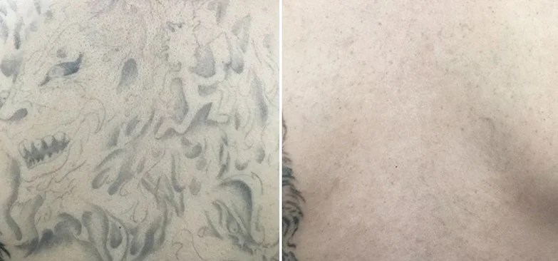 Tattoo Removal in Wilmington