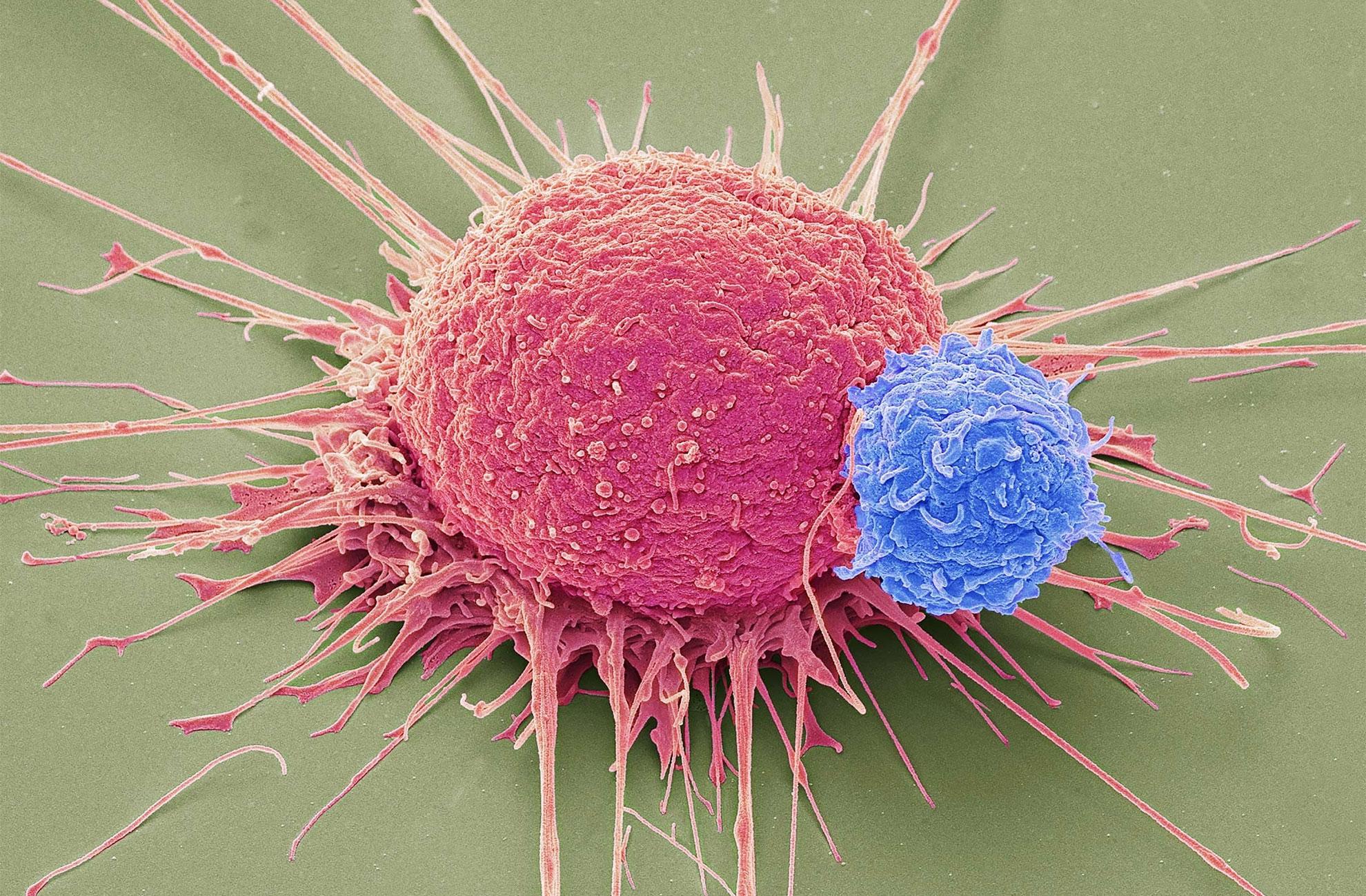 procedimientos-invasivos-en-cancer-prostata