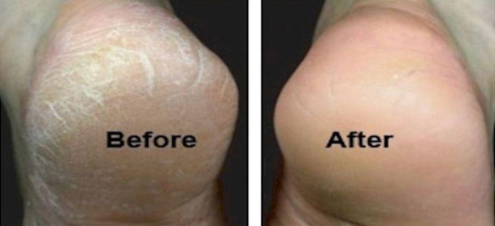 11 Vicks Vaporub Uses - Soften up those dry, cracked heels.