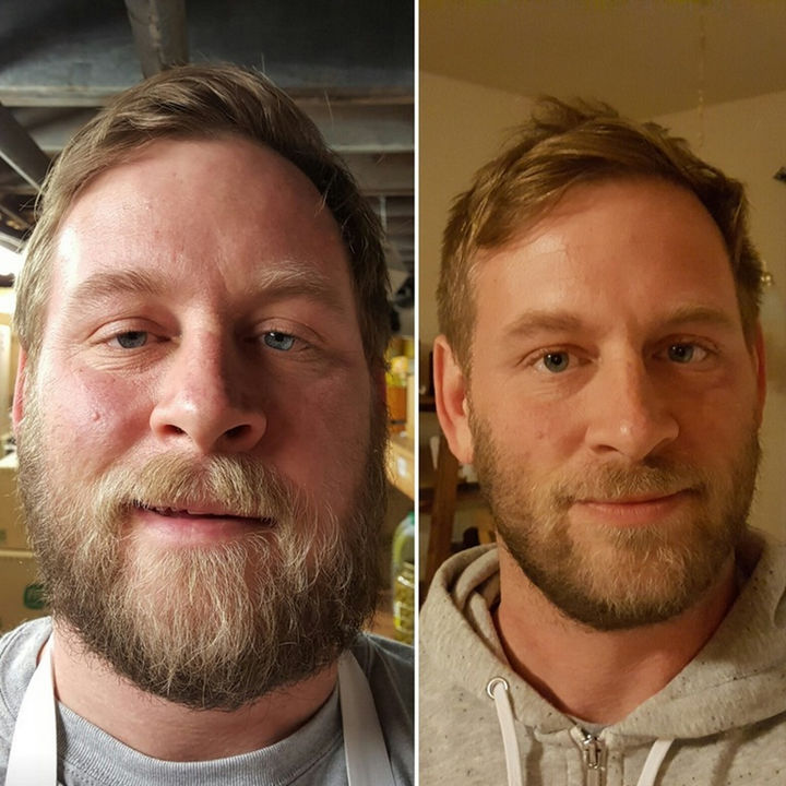 Before and After Weight Loss Photos of People Who Quit Drinking - 7 Months Sober.