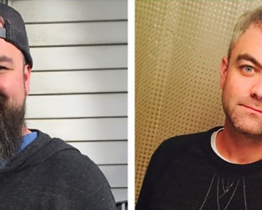 Before and After Weight Loss Photos of People Who Quit Alcohol.