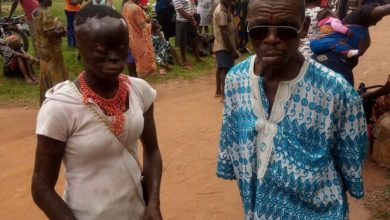 Photo of Man Poured Acid On His Elder Brother and wife