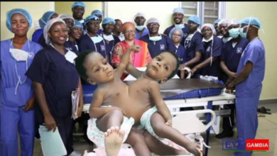 Nigerian Doctors Who Seperated Conjoined Twins Set to be Honored