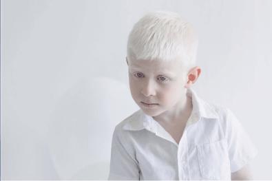 Yulia Taits revela la belleza natural de las personas albinas Captura-de-pantalla-2016-11-23-a-las-4.45.40-p.m.