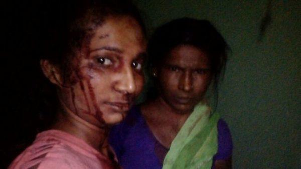 Mujer de la India se toma selfie después de pelear con un tigre 100694962_8f93dba4-41de-4a6f-8737-39f734e46d0b-600x337