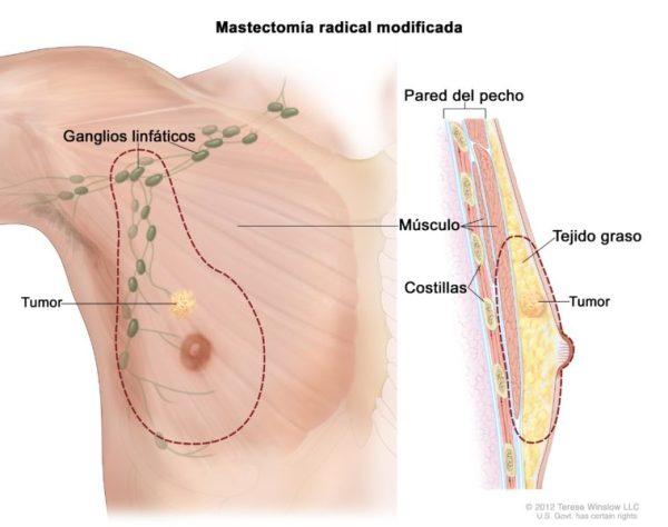 Cáncer de mama en hombres: también es el mes rosa para ellos CDR728793-600x474