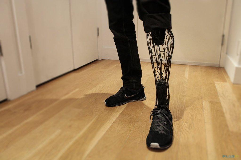 sensible-prosthetics