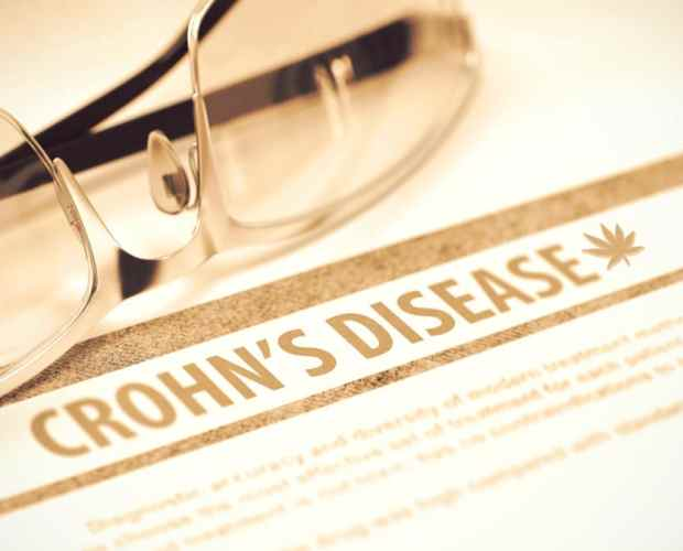 can cbd help with crohns disease