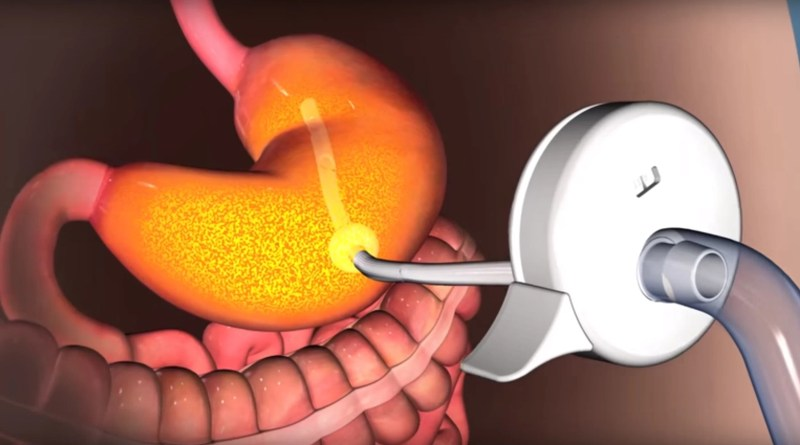 What Is Stomach Pumping?