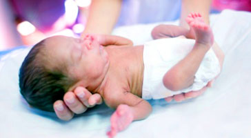 Signs of prematurity