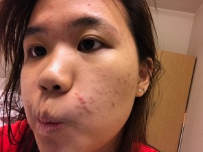 dealing with acne breakout