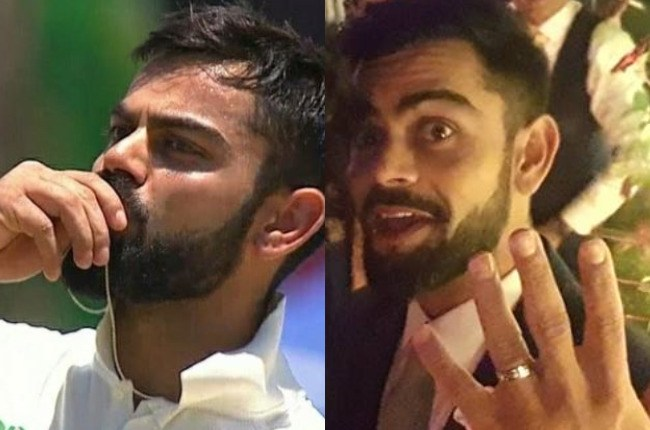 Virat flaunts his engagement ring   #2018 Wedding Trends in Making – 5 Different styles of flaunting that wedding accessory!