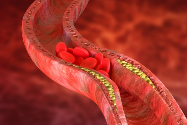 15 Healthy Eating Tips to Manage Blood Cholesterol