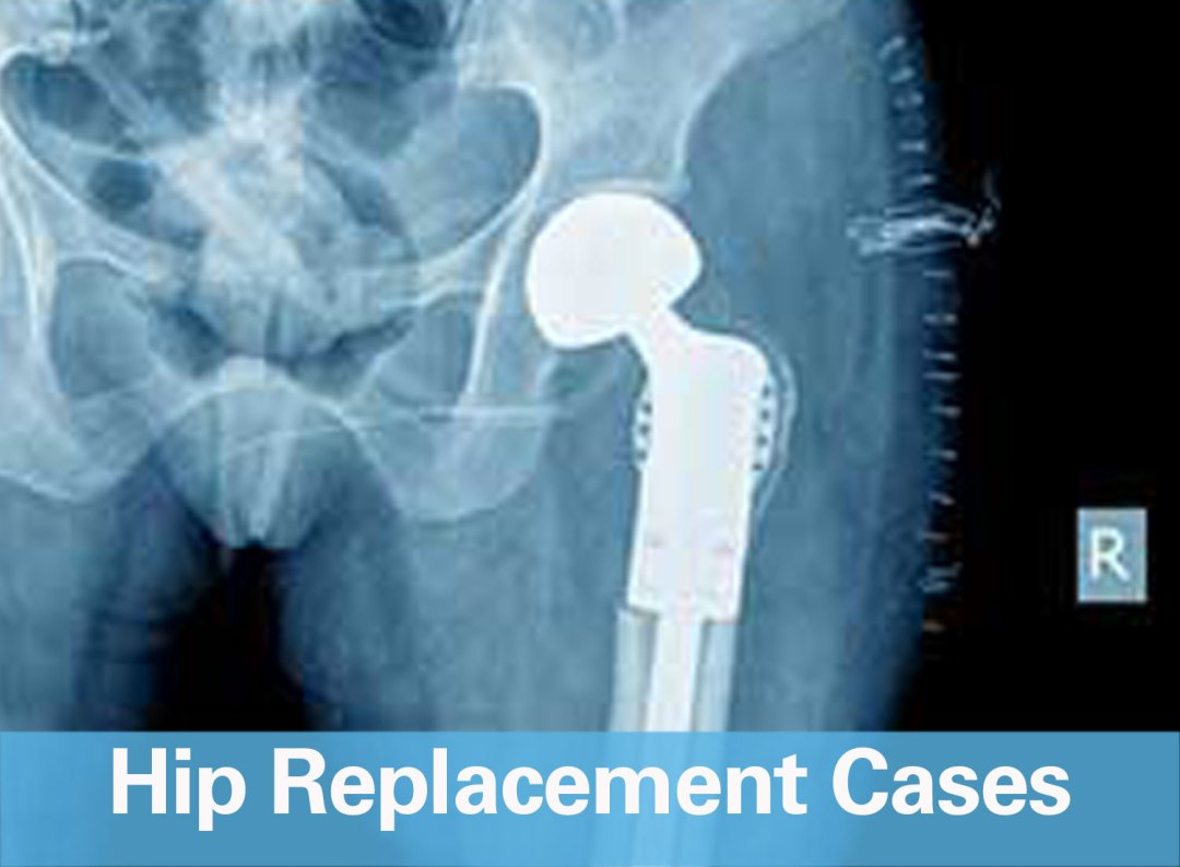 WKG Law Hip Replacement Cases