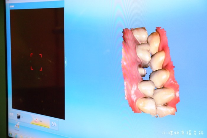 【牙醫推薦】悅庭牙醫,全瓷冠假牙.牙套2小時內快速完成,超先進技術推薦,價格合理! @小環妞 幸福足跡