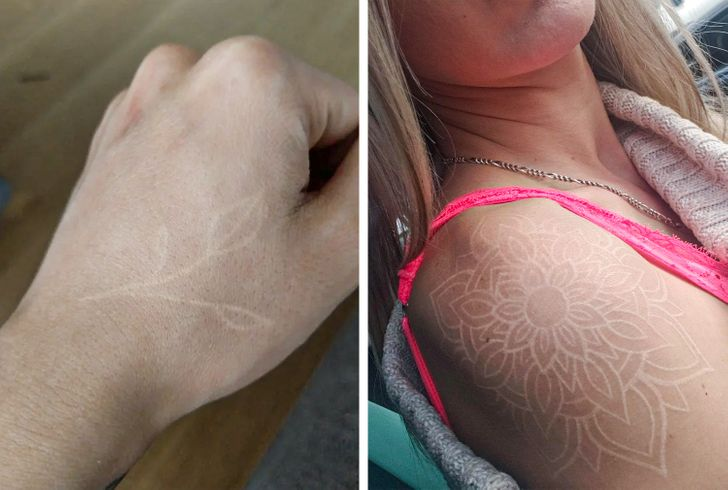 7 Things You Need to Know Before Getting a White Tattoo