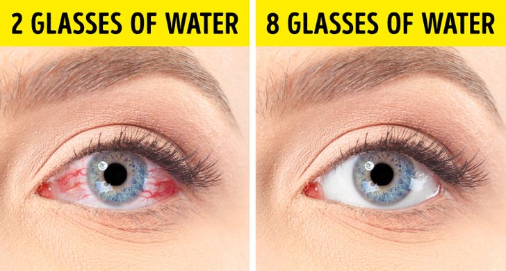 10Tips toHelp You Heal Dry Eyes