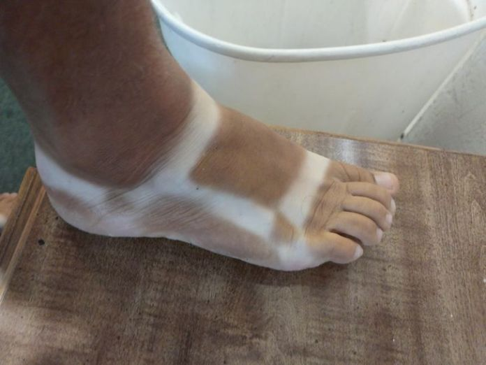 """20 Pics of People Who Took Tanning Too Far and Were """"Truly Marked"""""""